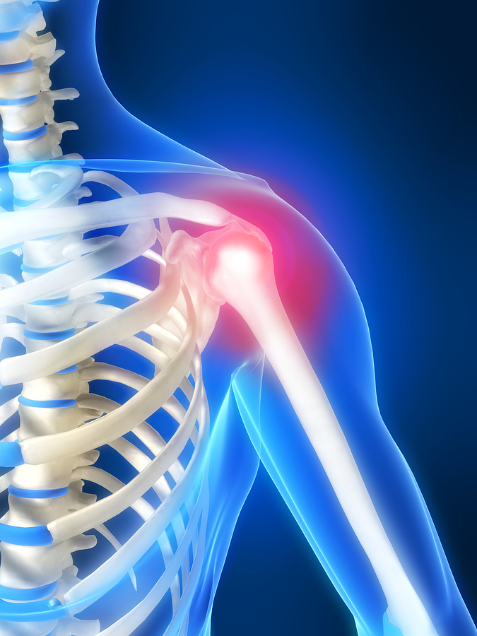 Shoulder Pain in Bergen County, NJ and Paramus, NJ
